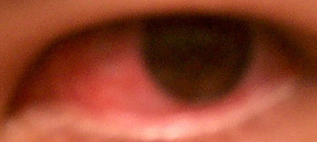 i've got red eyes